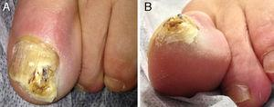 Hyperkeratotic tumor that has destroyed the distal lateral border of the nail of the left great toe: A, Superior view. B, Inferior-lateral view.