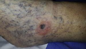 Clinical presentation. Elevated, asymmetric, dark blue and brown lesion with poorly defined borders and a diameter of 1cm; the lesion is surrounded by halo eczema with desquamation. Background of edema and varicose blood vessel dilatation.