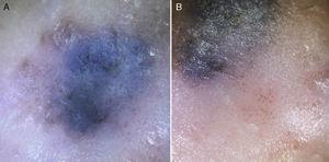 Dermoscopy. A, Blue-whitish veil and structureless brown and black areas in an irregular distribution. B, Glomerular and dotted vessels and fine whitish desquamation in the area of halo eczema.