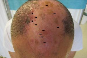 Plaque of scarring alopecia in the parietal area with numerous white papular lesions inside (, and papules and follicular pustules, and tufted hair folliculitis at the margins (▴).