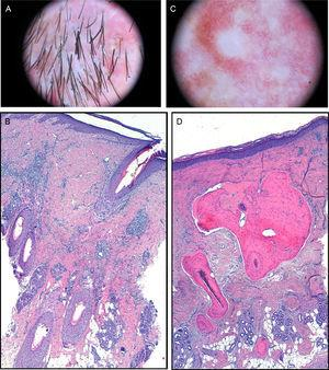 A, Dermoscopic image. Polytrichia, follicular pustules, and milky-red areas with loss of follicular orifices. B, In the dermis, chronic granulomatous-histiocytic inflammatory infiltrate in perifollicular regions (hematoxylin-eosin×100). C, Dermoscopic image. Whitish areas. D, Mature bone tissue with bone marrow immersed in dermal collagen and subcutaneous cell tissue (hematoxylin-eosin×100).
