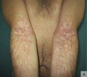 Annular syphilis in the elbow pits and on the forearms (photograph courtesy of Dr Enrique Herrera).