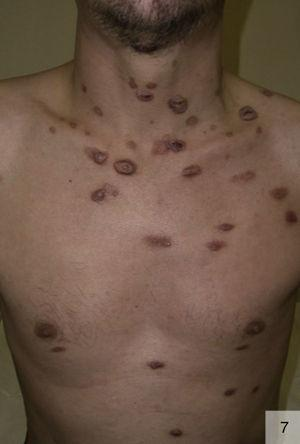 Malignant syphilis in a patient with human immunodeficiency virus coinfection (photograph courtesy of Dr Vicente García-Patos).