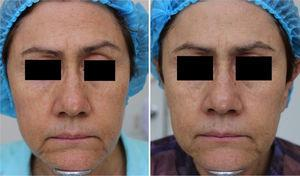 Before and after clinical photographs. After treatment with MAL+daylight, facial skin appears lighter, with improvement of frontal and external eye wrinkles.