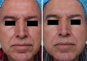 Before and after clinical photographs. After treatment with MAL+daylight, facial skin appears lighter, with improvement of frontal wrinkles and of nasolabial folds and perioral wrinkles.