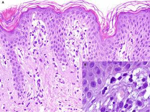 A. Hematoxylin-eosin, original magnification,×100. Biopsy of the edge of the lesion. Elongated rete ridges with a lichenoid lymphocytic infiltrate at the top of the dermal papillae and vacuolization of the basal layer. B. Hematoxylin-eosin, original magnification,×400. Greater detail showing multiple apoptotic keratinocytes.