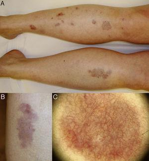 A, Well-defined, round and oval plaques affecting the anterior aspect of both lower legs. B, Detail of an isolated erythematous lesion, with orange, yellowish, brownish, and whitish areas; superficial atrophy and numerous telangiectasias can be observed. C, Dermoscopic image showing a dense network of branching anastomosing vessels on a yellow-orange background with whitish areas.