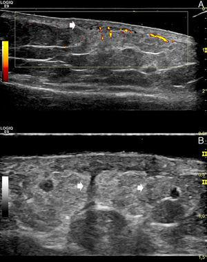 A, Power Doppler ultrasound (linear 15MHz transducer; longitudinal axis, left leg): hypoechoic areas in the mid and deep dermis (arrow), with blurring of the dermohypodermal junction and a diffusely increased echogenicity of the underlying superficial hypodermal adipose tissue. Power Doppler shows increased dermal and superficial hypodermal flow. The image allows us to compare the affected area (right side of the image) with healthy perilesional skin (left side of the image). B, Gray-scale ultrasound (linear 18MHz transducer; longitudinal axis, left leg). The hypoechoic vertical bands correspond to thickened septa (arrows).