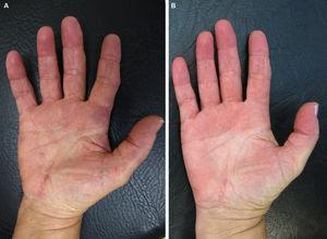 A, Indurated, papular erythematous-violaceous lesions on the palms and volar surface of the fingers. B, Complete resolution of the lesions after treatment.