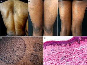 A, Hyperpigmented oval plaques on the back. B and C, Multiple oval lesions on the thighs. D, Close-up image showing ichthyosiform flaking with sharp, well-defined borders. E, Compact hyperkeratosis, thinning of the epidermis, absence of the granular layer, flattening of the epidermal crests, hyperpigmentation of the basal keratinocytes, a mild perivascular infiltrate, and few skin adnexa. Hematoxylin and eosin, original magnification×10.