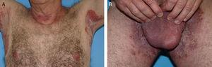 A and B, Erosive, erythematous plaques in the axillary and inguinal skin folds.