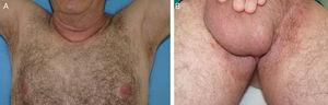 A and B, Complete resolution of the lesions in the axillary and inguinal skin folds 16 months after initiating treatment with doxycycline.