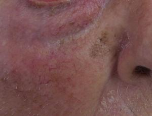 Flat pigmented lesion on the face of an elderly person.