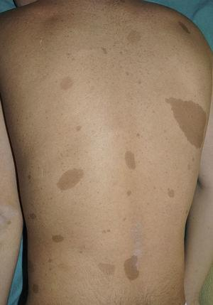 Typical café-au-lait spots in a 9-year-old patient with NF1.