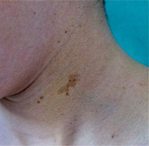 Café-au-lait spots with polygonal shapes in 2 patients with LEOPARD syndrome. Source: Taken from Ramos-Geldres et al.27