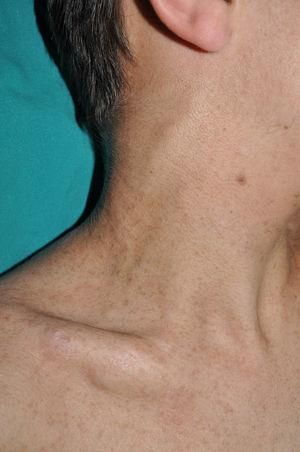 Subcutaneous nodular neurofibroma on the right side of the neck in a young adult with NF1.
