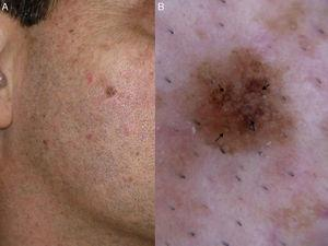 Lentigo maligna. A, Flat brown symmetric lesion with a diameter of 6mm on the right cheek of an adult. B, Dermoscopic features: asymmetric pigmented follicular openings (black arrows).