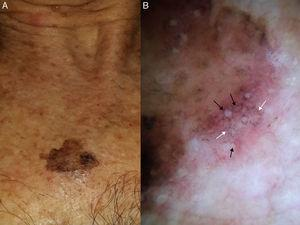 Extrafacial lentigo maligna. A, Irregular dark brown and black lesion, measuring 2cm at its longest point, in the neckline area. B, Dermoscopic features: asymmetric pigmented follicular openings (black arrows), gray dots forming granular-annular pattern (white arrows), and brown structureless areas.