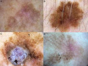 A-D, Dermoscopic features of extrafacial lentigo maligna; lesions located on the upper limbs. Note the gray dots forming a granular-annular pattern in some sectors, the brown structureless areas, and the rhomboidal structures (black arrows). Lesion C is lentigo maligna melanoma; note the whitish-blue veil.