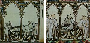 Scenes illustrating Cantiga 54. On the left, the monk afflicted with a disease that causes tumors on his face lies wrapped in a shroud. On the right, the monk is awake, restored to health after the miracle. © by Patrimonio Nacional.