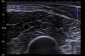 Cutaneous ultrasound revealed a marked loss of subcutaneous tissue (asterisk and short arrow) in comparison to the healthy adjacent subcutaneous tissue (circle and long arrow).
