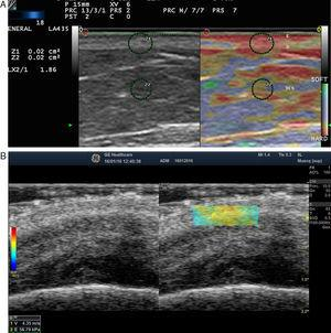 A, Strain elastography of normal skin. Note the strain ratio of the dermis and the fat (SR=1.86), which indicates that the dermis is stiffer than the subcutaneous tissue. E indicates epidermis; D, dermis; TCS, subcutaneous cellular tissue. B, Shear wave elastography of the dermis of the scalp. In the lower right corner, note the parameters of velocity and pressure in the region of interest (yellowish-green rectangle).