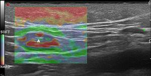 Strain elastography of an inflamed lymph node (A). Note that the medulla is stiffer than the cortex.