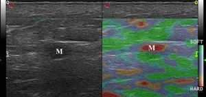 Strain elastography of a lymph node metastasis of melanoma (M). Note the complete rigidity of the lesion and the lack of soft areas.