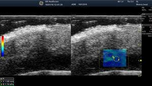 Shear wave elastography of a post-surgical inflammatory area of the scalp (blue region). On the left-hand side, note the velocities and pressures in the region of interest.