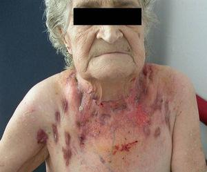 A patient with scrofuloderma, a condition referred to as lamparones (shiny, stretched swellings) in Cantiga 321. (Photograph from the archives of Hospital Parc Taulí, Sabadell, Barcelona).