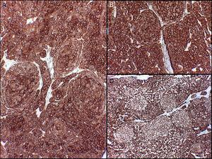 Positive immunohistochemistry with no differences between the 2 cell types. A, Stain for pancytokeratins AE1/AE2. B, Stain for cytokeratin 5/6. C, Stain for p63.