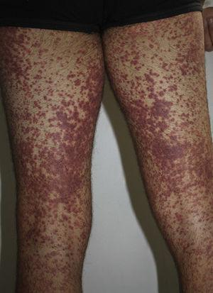 Purpuric erythematous maculopapular lesions on the lower limbs.