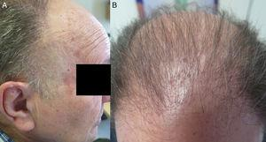 A and B, Androgenetic alopecia, Hamilton grade VI. On examination a band of thinner skin without hair follicles was found at both temples. Both erythema and follicular hypererkeratosis were evident at the forehead and top of the head.