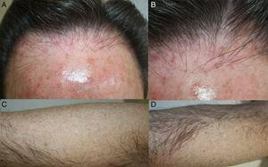 A, Hairline that is evidently receding from the forehead in a patient with no underlying androgenetic alopecia. B, Intense erythema and perifollicular hyperkeratosis. C and D, Bald patches on both arms.