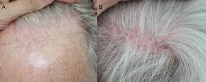 A, Receding hairline with erythema and perifollicular hyperkeratosis. B, Patches of parietal scarring alopecia typical of follicular lichen planus.