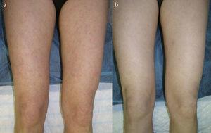 A. Erythematous papules on the lower limbs. B. Reduction in the number, intensity, and inflammation of the lesions 6 months after the addition of quinacrine 100mg/d to the treatment regimen.
