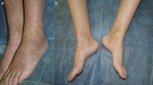 A. Purpuric papules on the lower limbs. B. Significant improvement after 3 months of quinacrine 100mg/d.