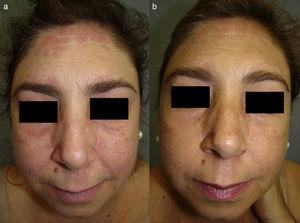 A. Heliotrope erythema and infiltrated pink plaques on the forehead, cheeks, and nasolabial folds. B. Significant improvement 6 months after the addition of quinacrine 100mg/d to the regimen.