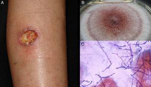 Hyalohyphomycosis ulcer due to Acremonium sp. B, Culture (Sabouraud dextrose agar medium). C, Direct examination of exudate (Giemsa, original magnification ×40).