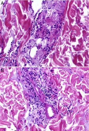 A, Focal epithelial necrosis in the eccrine coils with neutrophilic periglandular infiltration (hematoxylin-eosin, original magnification ×20). B, Predominantly neutrophilic perivascular and periadnexal infiltrates and foci of fibrinoid necrosis in the walls of dermal capillaries, with neutrophilic infiltration of the walls (hematoxylin-eosin, original magnification ×20).