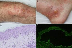 A and B, Tense bullae on an urticarial base located on the knee and ankle. C, Neutrophilic infiltrate with some eosinophils throughout the basement membrane, with formation of papillary microabscesses (hematoxylin-eosin ×200). D, Presence of IgG class antibodies directed against the dermal side of the blister in indirect immunofluorescence of salt-split skin (sodium chloride 1M) (1/40 antibody dilution).