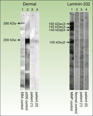 Immunoblot technique performed with dermal extracts of human skin, obtained by splitting skin with ethylenediamine tetraacetic acid and submitting to electrophoresis on SDS-polyacrylamide gel, as per the Laemmli method (left) as well as immunoblotting with recombinant laminin 332 (right). As shown in the left panel (dermal extracts of human skin), sera of patients 1 and 2 (corresponding to columns 3 and 4, respectively) show a band at 200kDa, corresponding to the same band present in the serum of another patient with anti-p200 pemphigoid (column 2). This band is not present in the serum of a patient with epidermolysis bullosa acquisita (column 1), but a band is present at 290kDa, corresponding to collagen vii. In the right panel (recombinant laminin 332), the recombinant protein is not detected in the sera of patients 1 and 2 (columns 3 and 4, respectively) and the serum from healthy control (column 2), whereas the serum of a patient with anti-laminin 332 pemphigoid (column 1) has several bands at 165, 145, 140, and 105 140kDa, corresponding to the α3, β3, and γ2 chains of laminin 332, respectively.