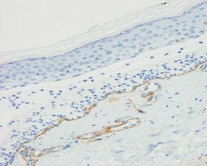 Immunohistochemical study with collagen iv, showing staining of the dermal part of the blister, thus demonstrating that the collagen is above the lamina densa, as well as the wall of dermal vessels (collagen iv ×200).