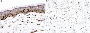 Immunohistochemical study for SOX10. (A) Melanoma in situ, with contiguous proliferation and suprabasal spread of atypical melanocytes (magnification 200×). (B) Desmoplastic melanoma with diffusely positive nuclear expression (magnification × 100).