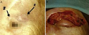 Merkel cell carcinoma removed with Mohs surgery. A, Tumor on the eyelid. B, Surgical defect after Mohs surgery.