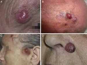 Merkel cell carcinoma tumors. A, Erythematous nodular lesion that is well defined, smooth, and shiny; telangiectases are evident on the surface. B, Poorly defined plaque with multiple nodules across its surface. C, Disseminated Merkel cell carcinoma. D, Small Merkel cell carcinoma.
