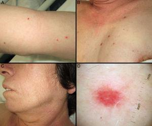 A and B, Violaceous, dome-shaped papules with a vascular appearance on the upper chest and arms. C, Hypertrichosis in the malar region. D, Dermoscopic image showing milky-red areas.