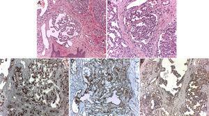 Pathologic examination of a papule from the upper chest. A, Multiple formations with a glomeruloid appearance in the dermis, hematoxylin-eosin, original magnification ×10. B, Image with greater detail, hematoxylin-eosin, original magnification ×20. C, Stain showing CD34-positive cells exclusively in the capillary vessels, hematoxylin-eosin, original magnification ×20. D, Stain showing CD31-positive cells in sinusoidal vessels and capillary vessels of the glomeruloid hemangioma, hematoxylin-eosin, original magnification ×20. E, Stain showing cells positive for vascular endothelial growth factor in both types of vessels, hematoxylin-eosin, original magnification ×20. gr2.