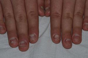 Rough and brittle surface of all the nail plates, although less evident in the fifth fingers. Oil spots and pinpoint leukonychia are visible.