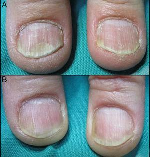 (A) Bilateral Distal onycholisis before treatment. The right thumbnail was treated with PDL while the left thumbnail with Nd:YAG. (B) After four sessions of PDL (right thumbnail) and four sessions of Nd:YAG (left thumbnail).